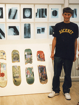 A young man smiling, standing by a number of broken skateboards, and x-rays of broken bones.